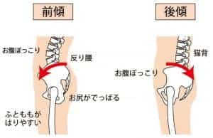 骨盤の角度