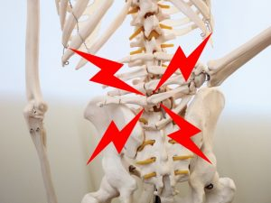 腰の痛みの見本
