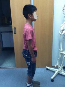 男の子の施術後の姿勢