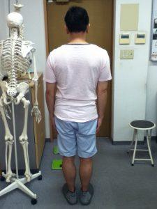 骨盤の側方変位